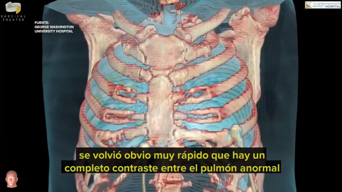 VIDEO Así afecta el coronavirus los pulmones de los pacientes