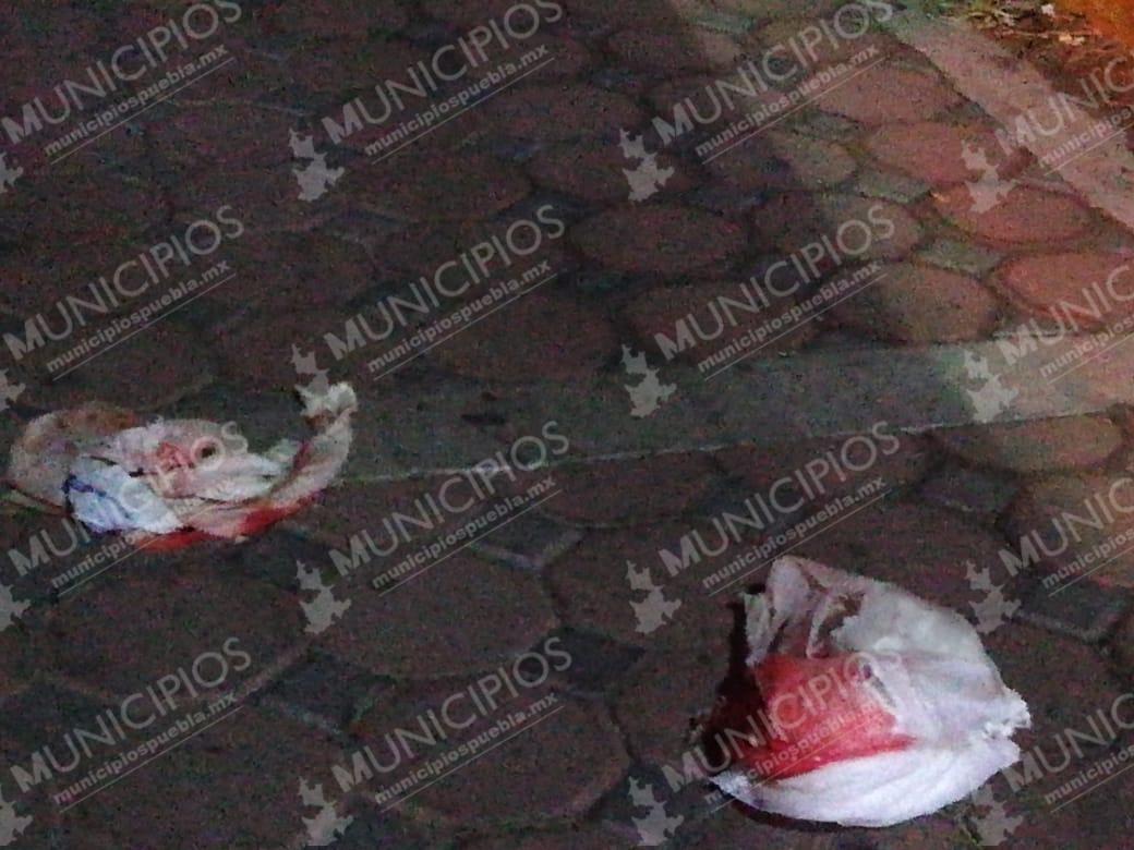 Dejan feto de 6 meses de gestación en calles de Ciudad Serdán