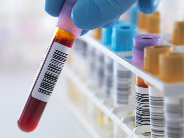 SALUD - Alemania confirma el primer caso de coronavirus; no estuvo en China