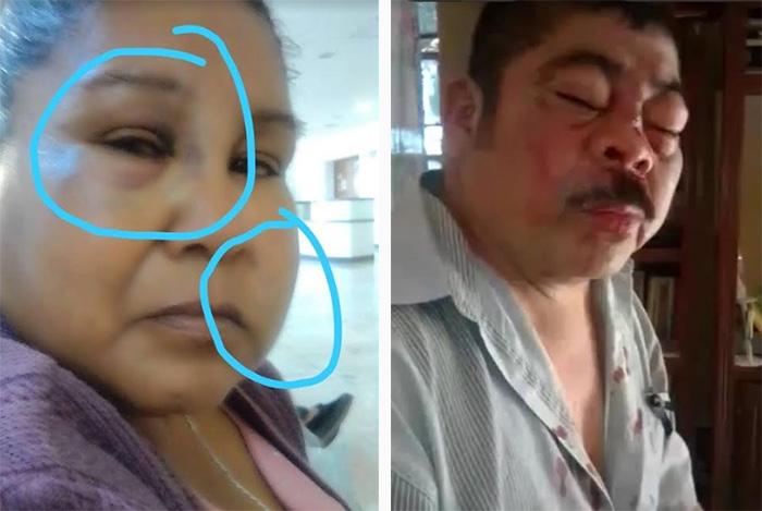 Denuncian que guarura de alcaldesa de Tepexco golpeó a una pareja