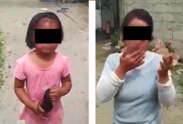 VIDEO Su abuela les quemó la cara a niñas de Tecamachalco; la denunciaron por Facebook