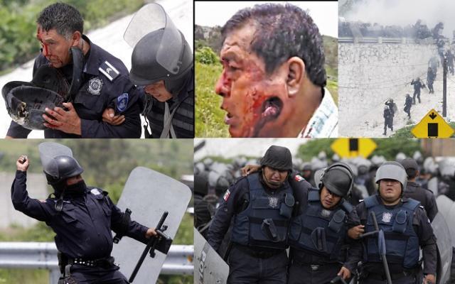 Convalece Martín Xelhua, el hombre herido en la mandíbula en Chalchihuapan
