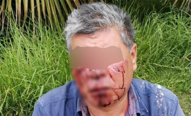 Empleado de funeraria golpea a abuelito porque no lo contrató en el IMSS La Margarita