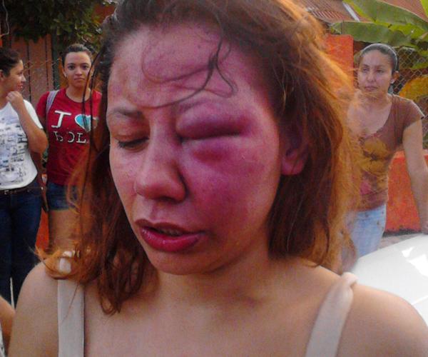 Tras agresiones de su pareja, autoridades la ignoraron en Texmelucan