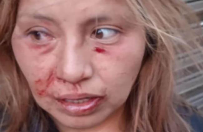 Vendedora de aguas fue golpeada por 30 pandilleros de Las Pechugas