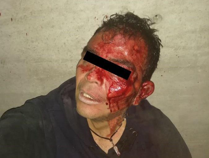 Madrugada de balaceras, heridos y hampones golpeados en Puebla