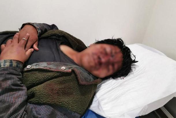 Trifulca entre tianguistas de Texmelucan deja varios heridos
