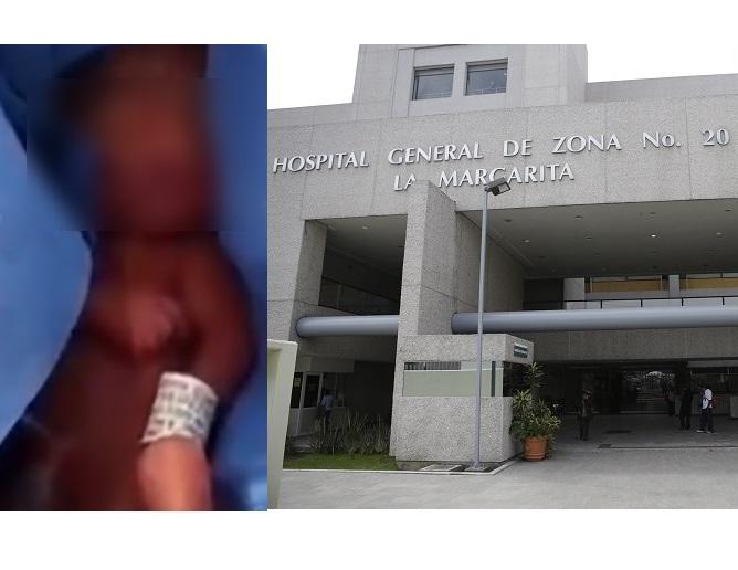 Bebé rescatado de la morgue del IMSS sigue luchando por su vida