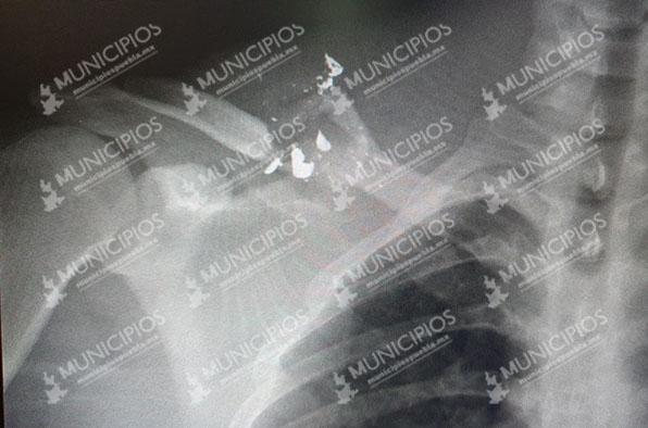 A balazos ladrones destrozan clavícula a joven en intento de asalto en Tecamachalco