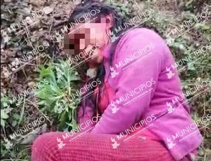 Su pareja la agredió a machetazos en Chiconcuautla