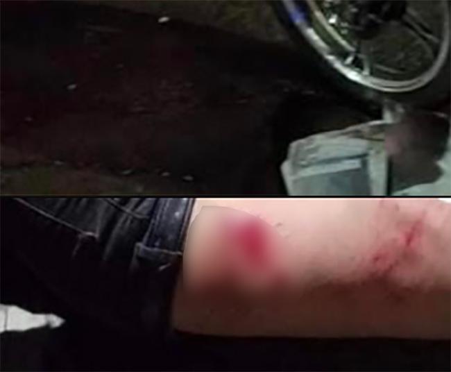 Motociclista de Atlixco casi se ahorca con cables de tianguistas