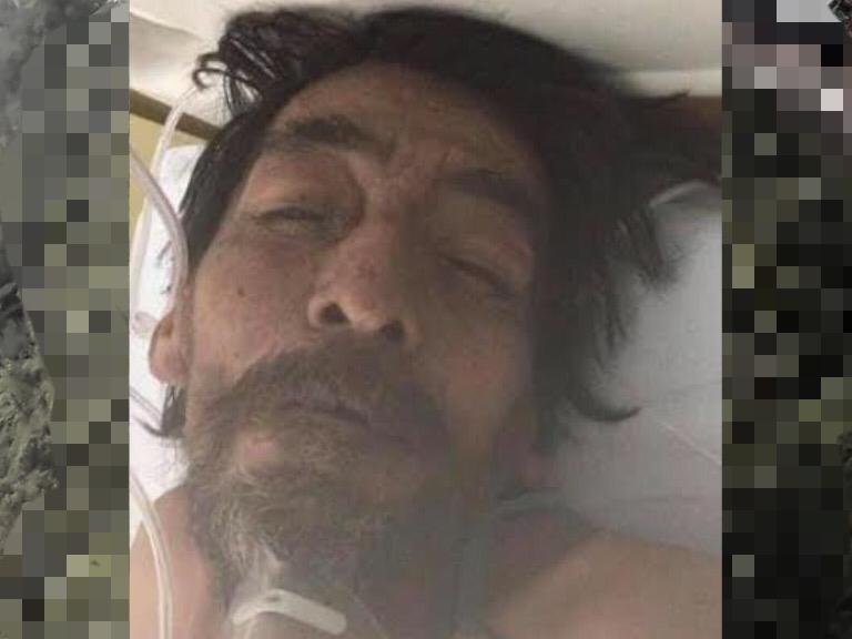 Buscan a familia de Oscar Huerta; está grave en hospital de Izúcar