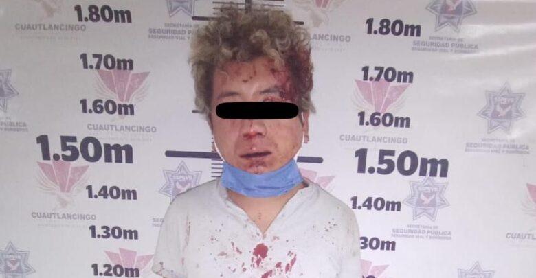 Cansados de la delincuencia, vecinos golpean a presunto ladrón en Sanctorum