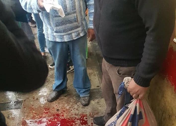 Recibe machetazo en la cabeza en intento de asalto en Teziutlán