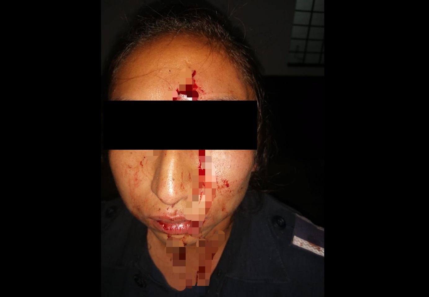 Mujer policía también sufre lesiones tras trifulca en Huauchinango